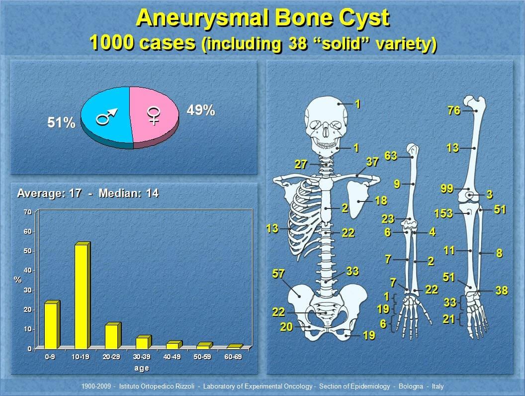 63 - Aneurysmal Bone Cyst