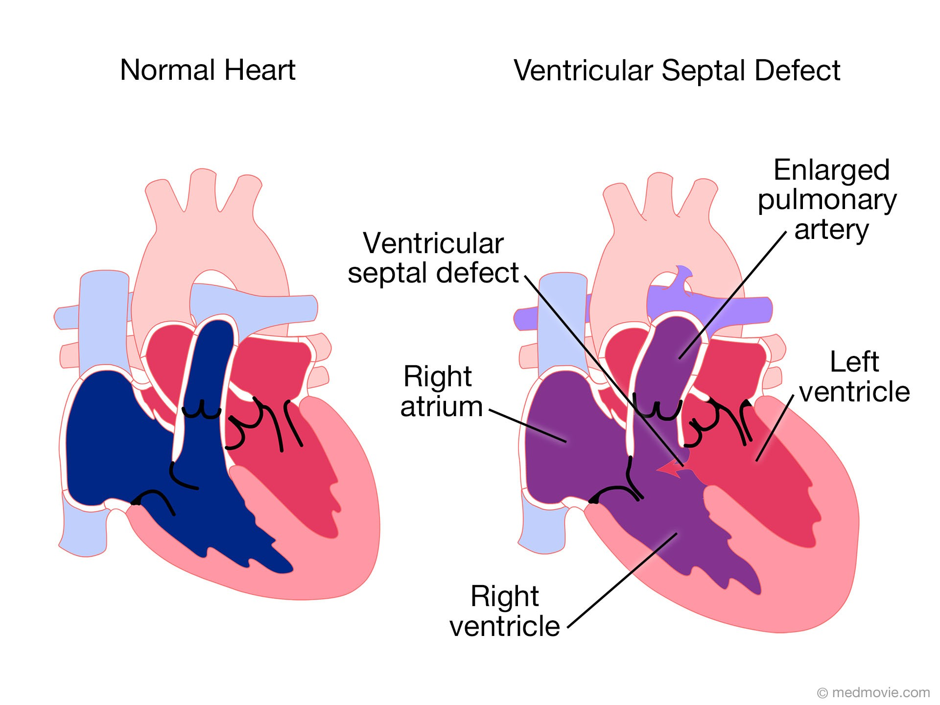 Illustration of a heart with a ventricular septal defect compared with a normal heart.