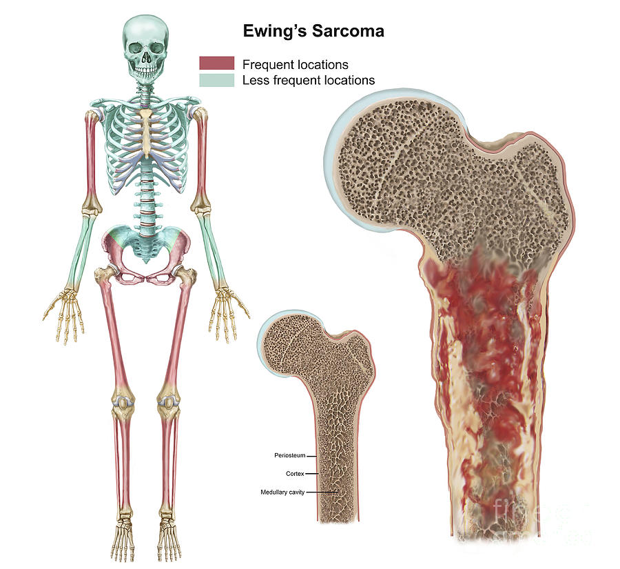 ewings-sarcoma-locations-trifocal-communications