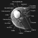 Giải Phẫu MRI Khớp