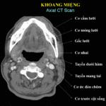 Giải Phẫu CT & MRI Vùng Cổ **