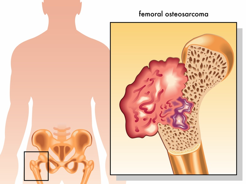 osteosarcoma-symptoms