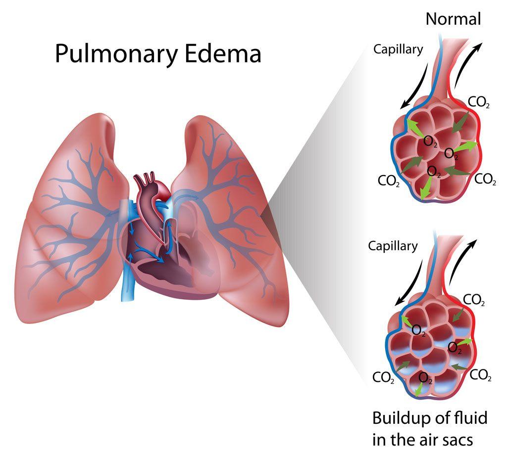 pulmonary-edema