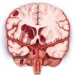 Nhồi Máu Não [228 Cases]