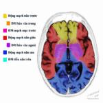 Giải Phẫu Tưới Máu Não *