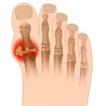 Gout * [60 cases]