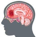 Đụng Dập Nhu Mô Não [39 cases]