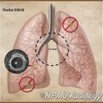 Dị Vật Đường Thở * [25 cases]