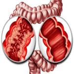 Viêm Ruột – Crohn's ** [62 cases]