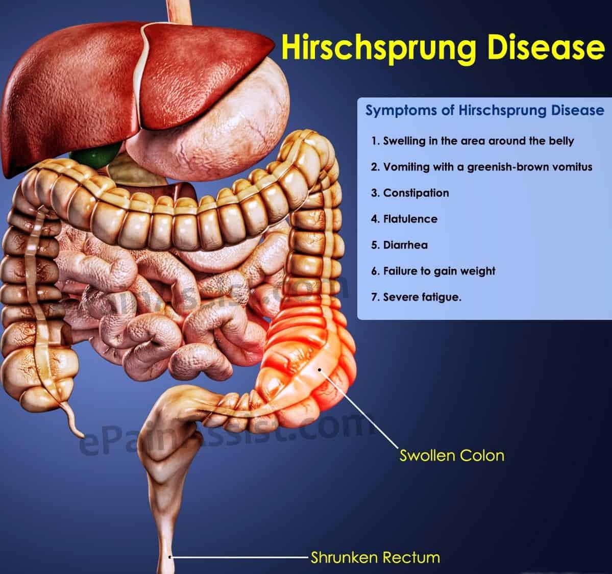 hirschsprung-disease