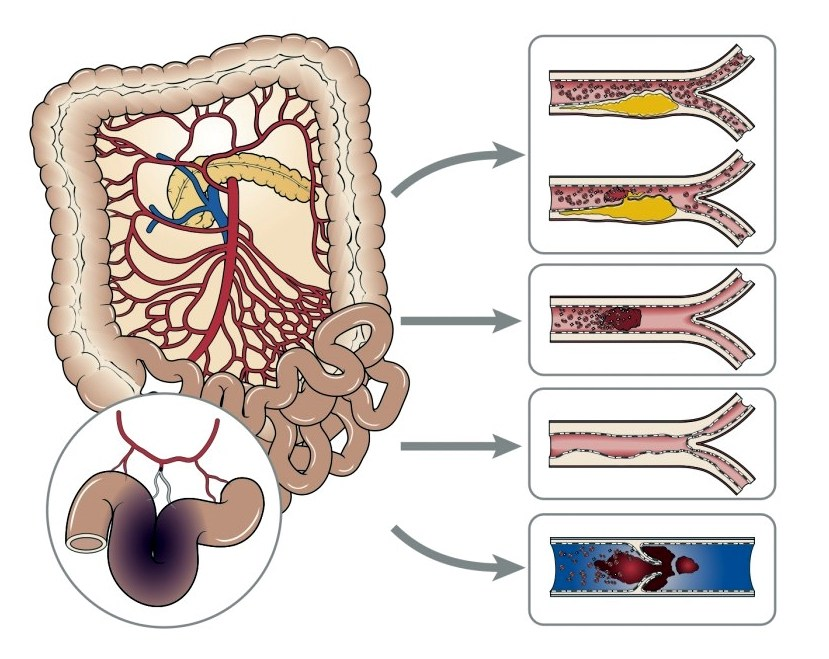 mesenteric-ishemia1-1024x724