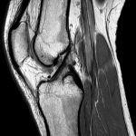 Giải Phẫu MRI Khớp Gối *