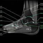 Giải Phẫu MRI Cổ – Bàn Chân