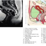 Giải Phẫu MRI Tiểu Khung