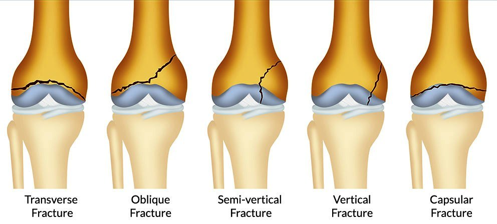 Distal-Femoral-Growth-Plate-Fracture1