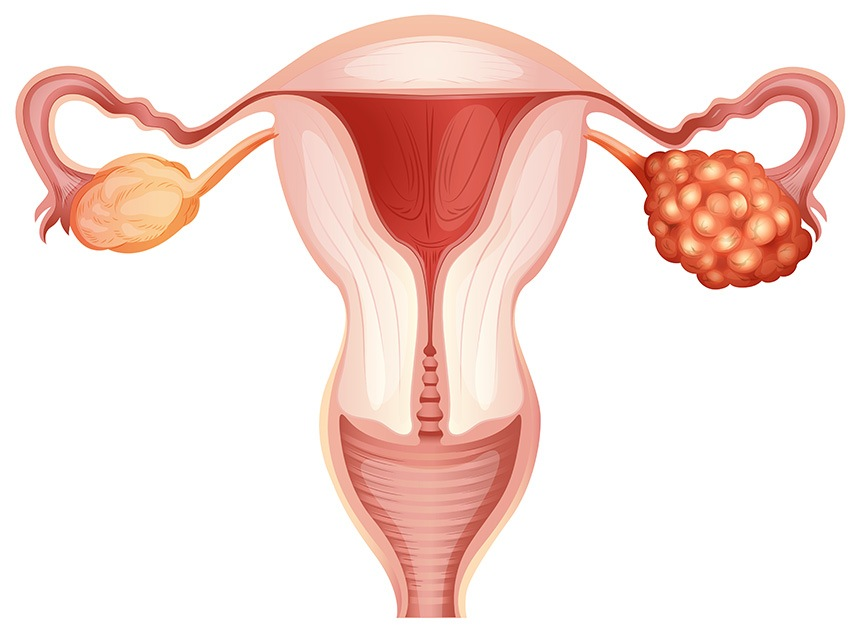 Ovarian-cancer-2