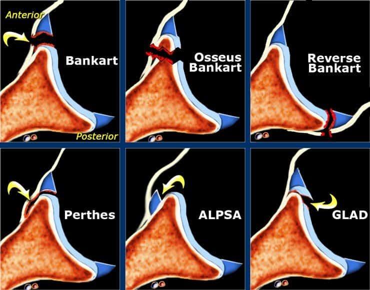 Hình ảnh MRI chấn thương khớp vai