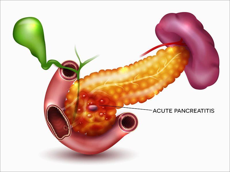 dt_170512_acute_pancreatitis_800x600