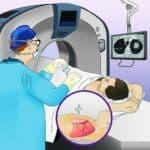 Kỹ Thuật Sinh Thiết Xuyên Thành Ngực *