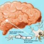 Bệnh Lý Chất Trắng * MRI Updating